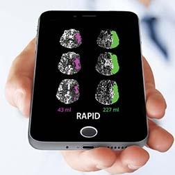 CHI St. Alexius Health Brings iSchemaView's RAPID™ Stroke Imaging Platform to Bismarck