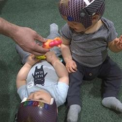 Helmets help remold children's heads