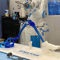 Bismarck adds new technology to help with knee replacement surgeries