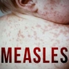 Homegrown with Hope: Growing Measles Threat